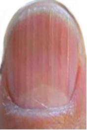 Dungi verticale pe unghii