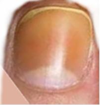 Tratament naturist pentru unghie lovita