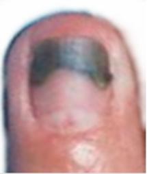 Vanat sub unghie